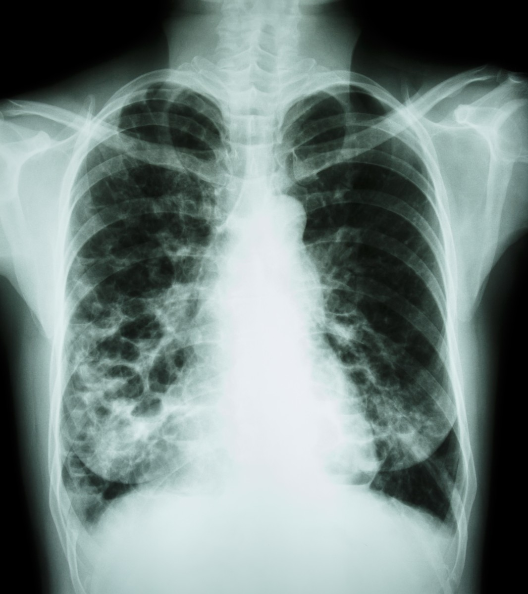 Viral Infections May Affect Cystic Fibrosis Patients: Insmed To Present Abstracts On NTM Lung Infection Therapy
