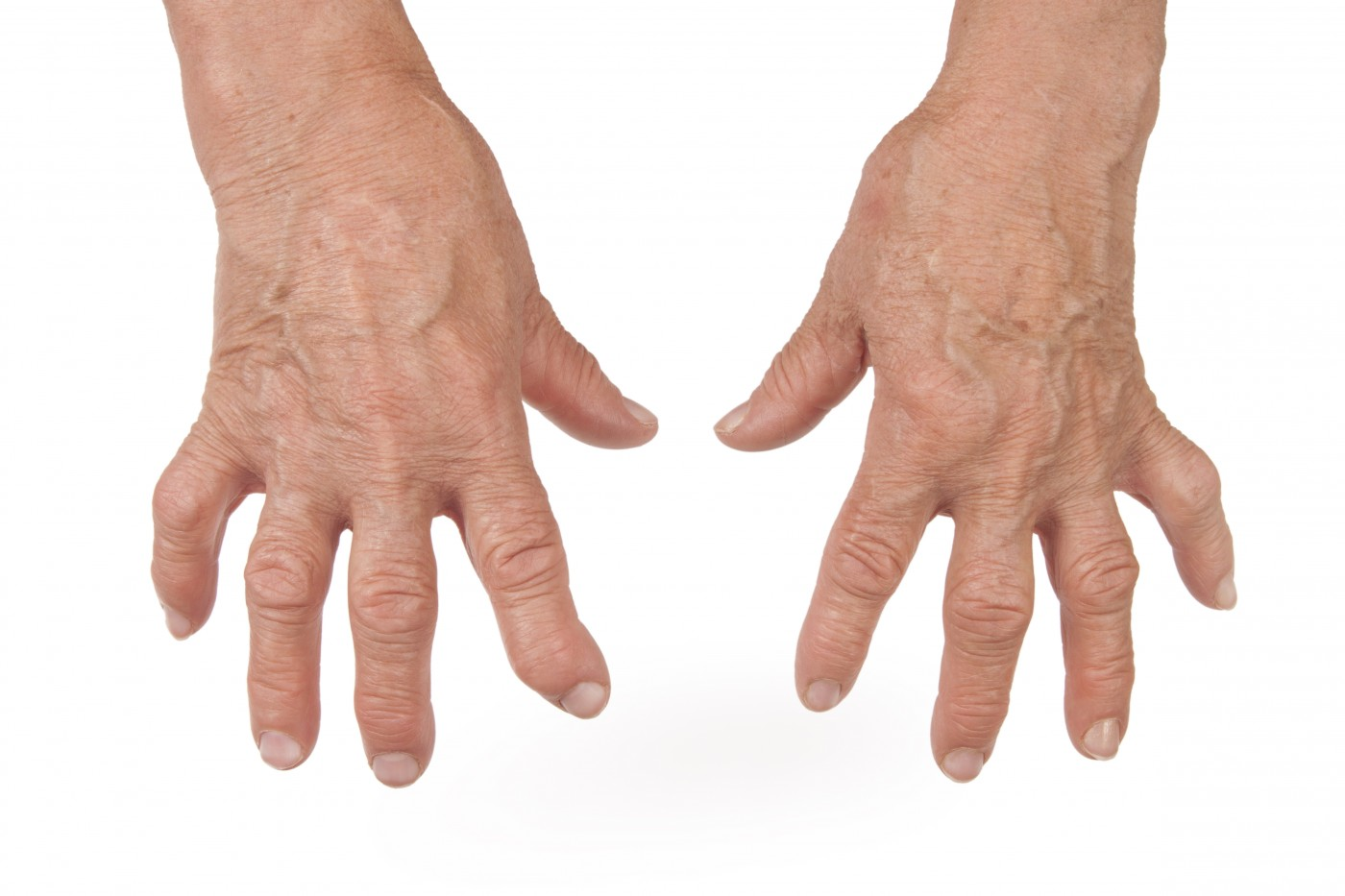 Rheumatoid Arthritis Found To Be More Severe With Co-Existent Bronchiectasis