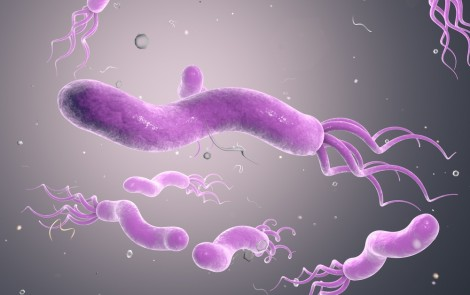 Changes in Composition of Airway Bacteria Evident in Bronchiectasis Patients, Study Reports