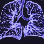 non-cystic fibrosis bronchiectasis and lung infection