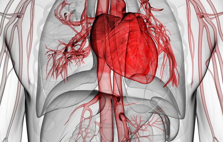 Bronchiectasis Severity a Risk Factor for Vascular Disease, Study Shows