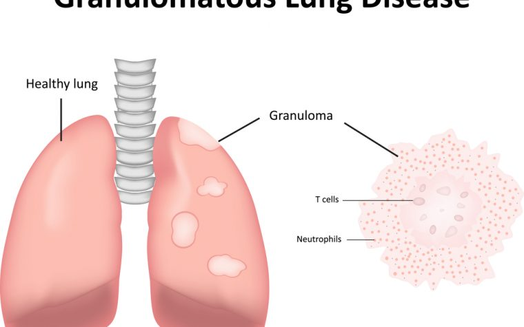 bronchiectasis linked to sarcoidosis