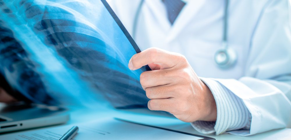 Brensocatib Significantly Lowers Flare Risk in Non-CF Bronchiectasis, Trial Shows