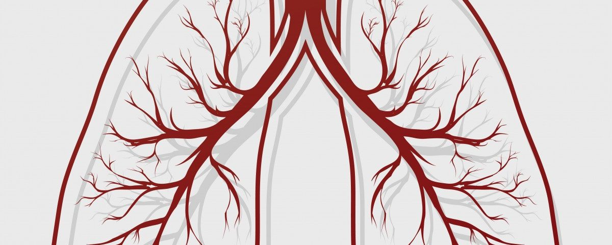 Artery Condition Increases Risk of Bronchiectasis Patients Having Heart Problem, Study Finds