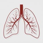 bronchiectasis and COPD exacerbations