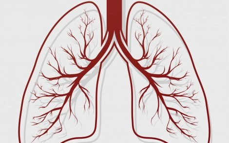 Bronchiectasis Associated with Acute COPD Exacerbations, Study Shows