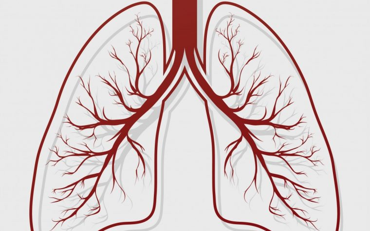 Bronchiectasis Common in COPD Patients with Frequent Flares and Hospitalizations, Study Finds
