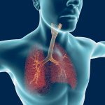 antibiotics and lung disease