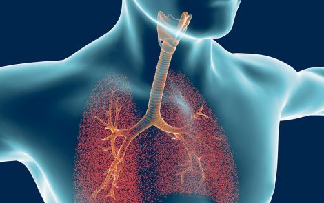 Renovion Raises $8.1M to Advance ARINA-1 Nebulizer Therapy