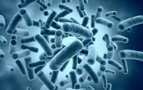Pus in Sputum Associated with Disease-prone Bacteria in Bronchiectasis