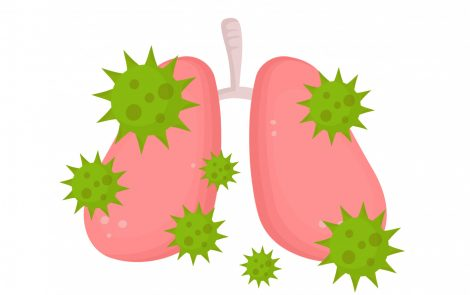 Bronchiectasis May Increase Risk for Severe COVID-19 Disease