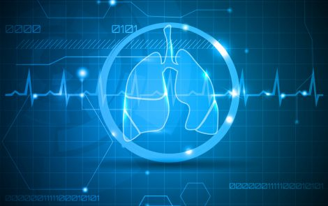 Progenitor Cell Transplant May Safely Stop Progression in Bronchiectasis